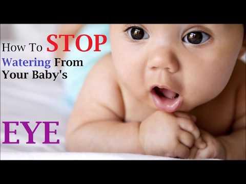 How to stop watering from your baby's eye.(Hindi )अपने बच्चे की आंख से पानी को रोकने के लिए