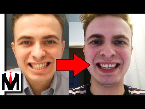 Does Activated Charcoal Work? | Carbon Coco Teeth Whitening Honest Review + How To