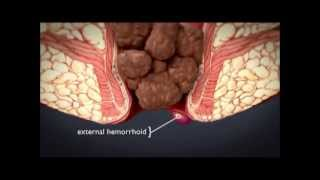 Hemorrhoids What Are Hemorrhoids What Is The Treatment For Hemorrhoids