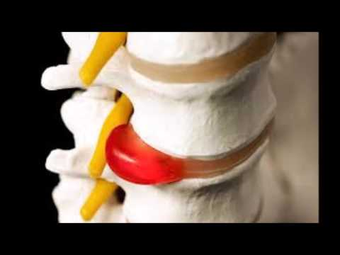 Sciatica Treatments - How To Sleep With Sciatica Leg Pain?
