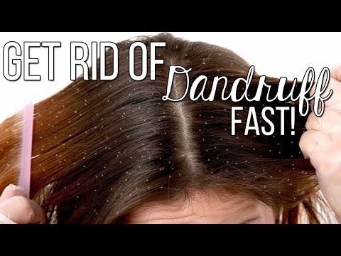 How to get rid of Dandruff FAST!! Only 2 Ingredients! Highly effective!