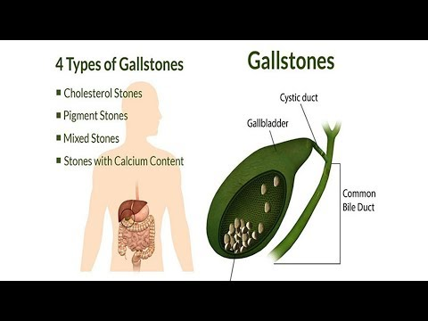 Foods That Can Easily  Dissolve Gallstones And Kidney Stones Faster Than Any Medication!