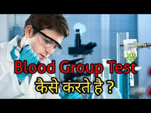 Blood group test  Procedure  || Slide Method Procedure