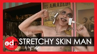 Meet the man with the world's stretchiest skin ... WEIRD!