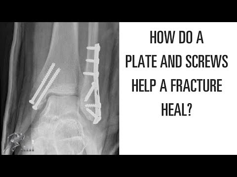 How does a plate and screws help a broken bone heal?