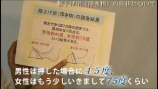 詳しく知りたい方は→http://www.gaihanbosi110.com/asiitami/ 様々な足の痛みを解消する方法をご紹介します。 ▲上記のURLをクリックしてご覧ください。  足の痛み-変形-足底筋膜炎-足裏-痛み-内反小指-痛み-治療-原因-変形-へバーデン-足痩せダイエット-魚の目-インソール-履くだけ-足の痛み解消-足の痛み-改善-外反母趾-治療-完治-原因-変形-外反母趾テーピング- はくだけダイエット-笠原巖-外反母趾-治療-完治-原因-はくだけダイエット-笠原巖-外反母趾 テーピング-足の痛み 変形-へバーデン 足-足痩せダイエット-魚の目-足底筋膜炎- インソール-履くだけダイエット-足の痛み-足の痛み改善-骨盤ダイエット-タコ-外反母趾-治療 外反母趾-外反母趾 テーピング-外反母趾 足の親指のしびれ-外反母趾 靴-外反母趾- 大阪-外反母趾 浮き足-福岡 シューズショップ-外反母趾-外反母趾 サポーター-廃用症候群-外反母趾 手術-名医-外反母趾 バスケットシューズ-外反母趾 病院 埼玉-外反母趾治る- 外反母趾 整形外科-外反母趾 靴香川-キネシオテープ 外反母趾-外反母趾 浮き足-子供 外反母趾 病院-外反母趾 靴店香川-外反母趾 エクササイズ-外反母趾 矯正器具-外反母趾 手術- 外反母趾 須田康文-外反母趾 スピリチュアル-外反母趾 症状-最新 外反母趾 手術-外反母趾 ECCO タオルギャザー-外反母趾 慶応大学病院-外反母趾-外反母趾 治療 大阪-外反母趾 福岡 病院- 靴修理 外反母趾-佐賀市 外反母趾 治療-外反母趾靴下-外反母趾 研究所-外反母趾とは-外反母趾 手術-日帰り 外反母趾-子供 外反母趾 靴店徳島-外反母趾 O脚-外反母趾 病院-福山 外反母趾- 手術名-外反母趾 原因-男 外反母趾-図解 外反母趾-うさぎや 外反母趾-福岡 シューズ-平尾 外反母趾-外反母趾 治療福岡-外反母趾研究所-外反母趾 矯正