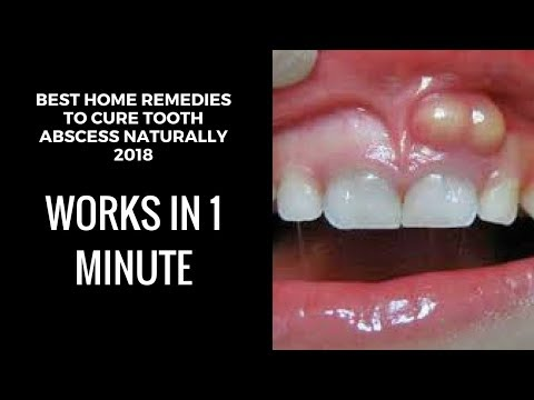 how to drain a tooth abscess at home| home remedies for tooth abscess|tooth abscess pain relief fast