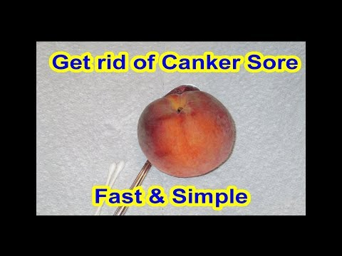 FASTEST way to get rid of Canker Sores, Cold Sores, Aphthous Stomatitis & Infections