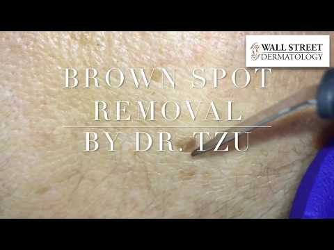 Brown Spot Removal by Hyfrecation with Dr Julia Tzu | Dermatologist in NYC | Wall Street Dermatology