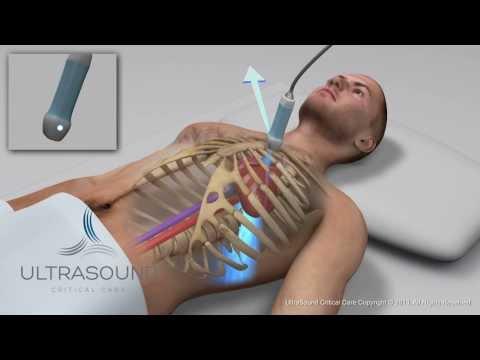 How to obtain: Parasternal Long Axis Ultrasound View - Training and Techniques - ICU