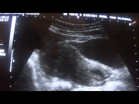 ultrasound simple ovarian cyst