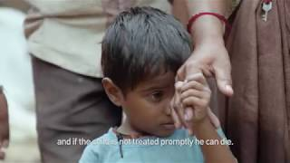 Building Toilets in India | Time For Global Action