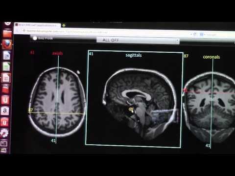 How to Read Brain MRI by Dr Hamza Alsayouf