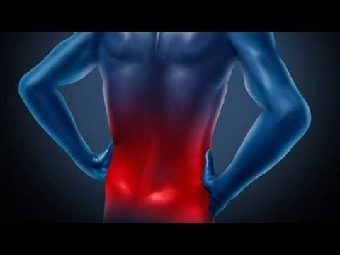 How to Treat Sciatic Nerve Pain