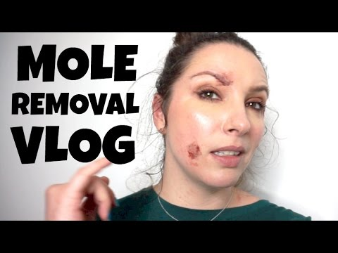Mole Removal Vlog - Radiofrequency (RF) skin surgery before and after