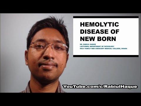 Hemolytic Disease of New Born Part 2 (HD)