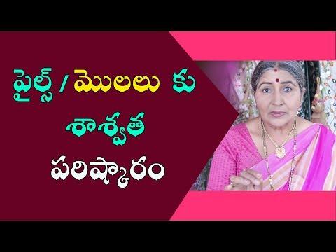 పైల్స్ / మొలలు  కు శాశ్వత పరిష్కారం | Piles Treatment In Telugu | How To Cure Piles At Home