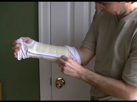 Removable cast