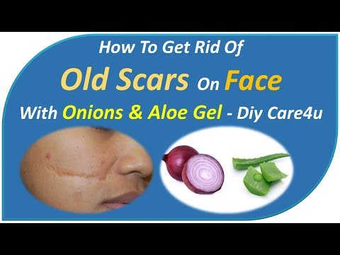 how to get rid of old scars on face-withOnions & Aloe gel-DIY Care4U
