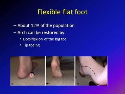 flat foot/ pes planus/ vulgus foot