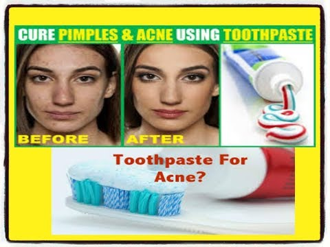 How to remove pimple in one night  रातों रात pimple  गायब हो जायेगा   पाईये बेदाग Skin  