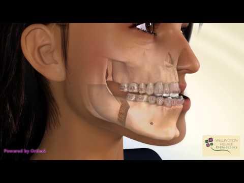 BSSO Mandibular Setback - Bracket With Face