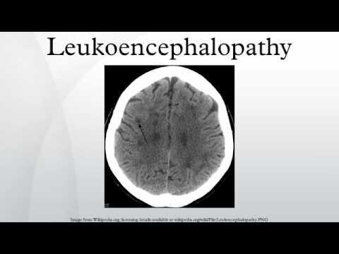 Leukoencephalopathy