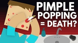Download How Dangerous Is Popping Pimples? - Dear Blocko #7 Video