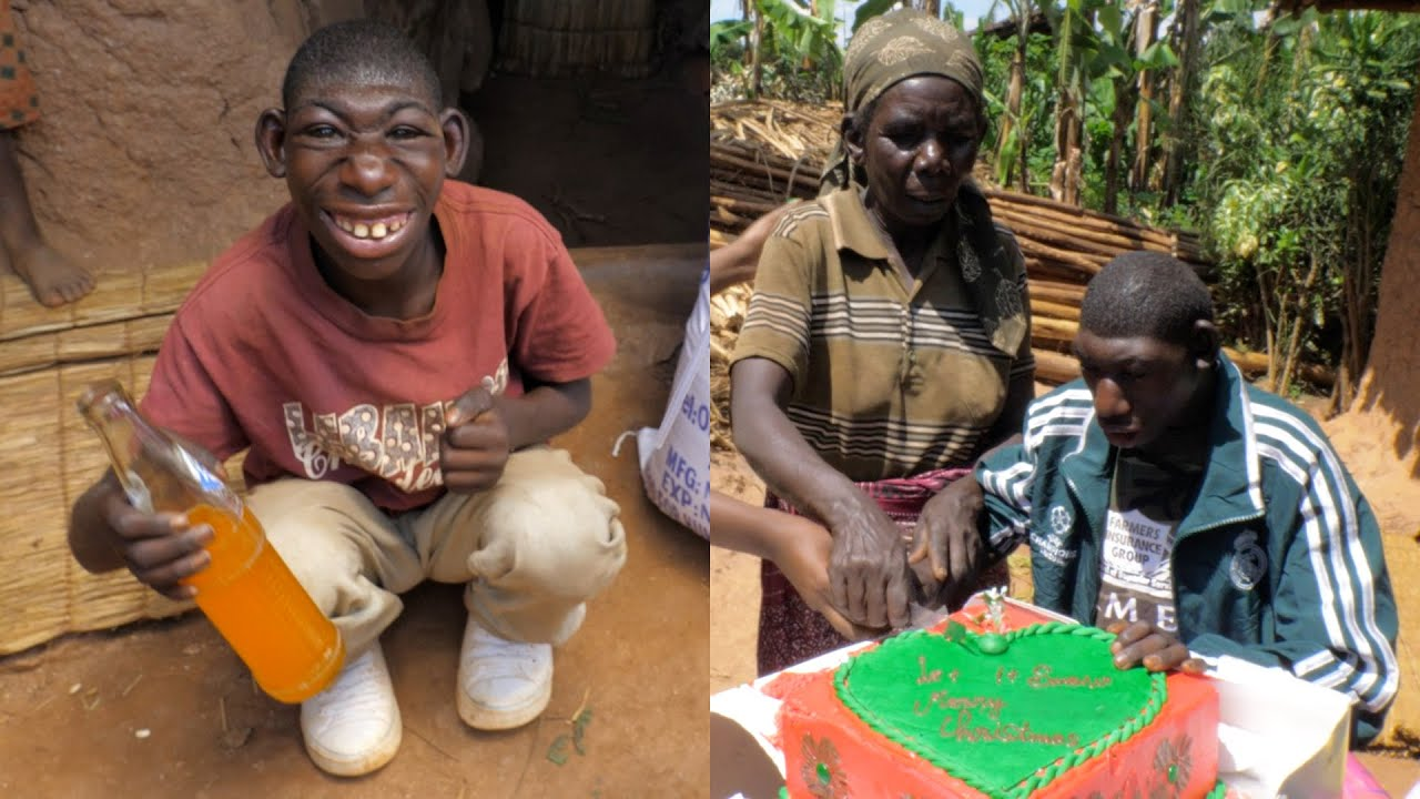 They Call Him a Monkey I Call Him Son From Heaven : Extraordinary People   UPDATE 2