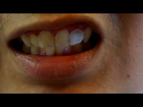 Fix a MISSING or BROKEN TOOTH AT HOME