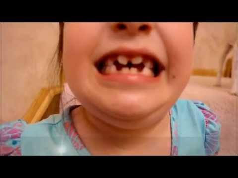 OMG !!  My Child, HAS BATMAN TEETH!