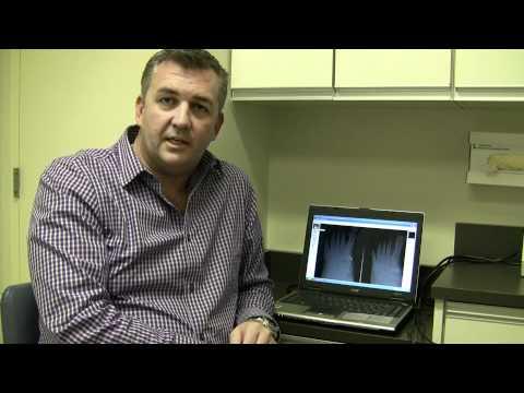 Joseph Larsen Discusses Toenail Fungus