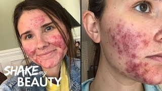 Going Out With My Severe Acne For The First Time | SHAKE MY BEAUTY