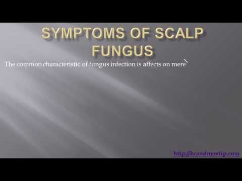 Fungus of the Scalp's Symptoms, Preventing and Treatment