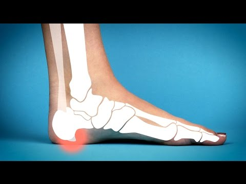 Two miracle cures for heel spurs