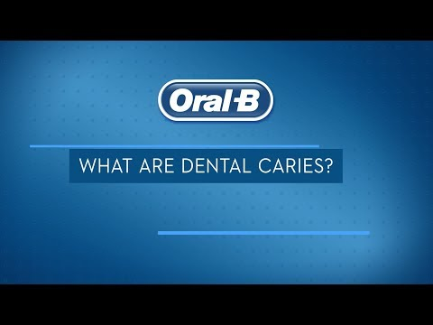 What are Dental Caries? Treatments, Signs, and Symptoms   Oral-B