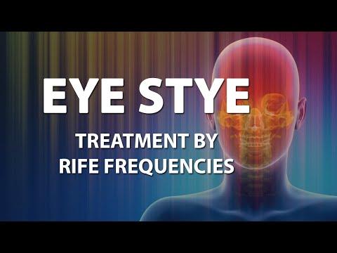 Eye Stye - RIFE Frequencies Treatment - Energy & Quantum Medicine with Bioresonance
