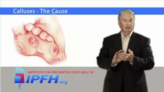 Calluses - The Cause