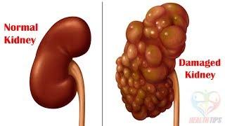 किडनी ख़राब होने के 4 संकेत आपको जरूर जानना चाहिए!! || Kidney Problam?