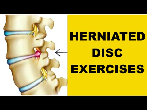 Best Exercises for Herniated Disc in Back (BEAT SCIATIC NERVE PAIN)