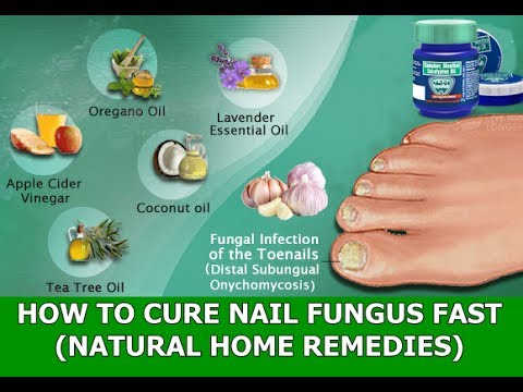 Toenail Fungus Natural Treatments : How To Cure Toenail Fungus Fast and Naturally (Home Remedies)