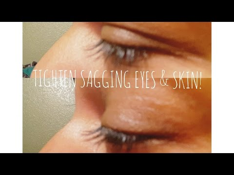 BEAUTY HACK!! TIGHTEN SAGGY DROOPY EYELIDS & EYEBROWS!!!   CLEARLY PLATONIC