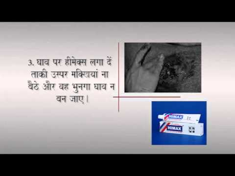 First Aid - Wound Treatment (Hindi)