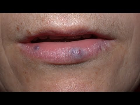 How to get rid of dark spots on lips?-Dr. Rasya Dixit