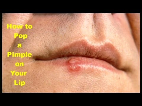 How to Pop a Pimple on Your Lip Fast Pop a Pimple Naturally At Home Pop A pimple With Home Remedies