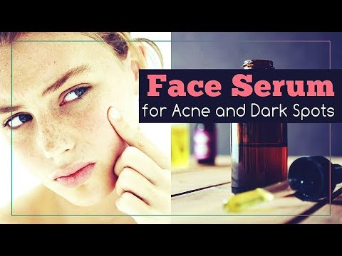 Face Serum Recipe for Acne, Scars and Dark Spots