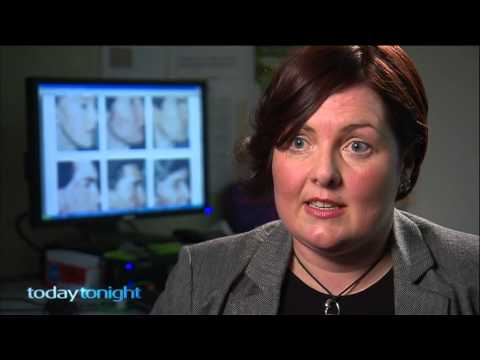 Organic Essential Oils & Acne - Y natural featured on TodayTonight Ch7