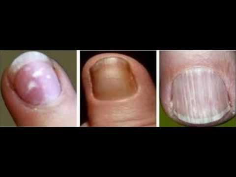 How To Keep Your Nails Healthy