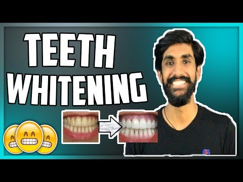 Teeth Whitening at home in Hindi★Yellow to White★TheRealMenShow★