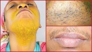 HOW TO GET RID OF UPPER LIP, CHIN AND SIDE HAIR ON THE FACE,  HOMEMADE HAIR REMOVER Khichi Beauty